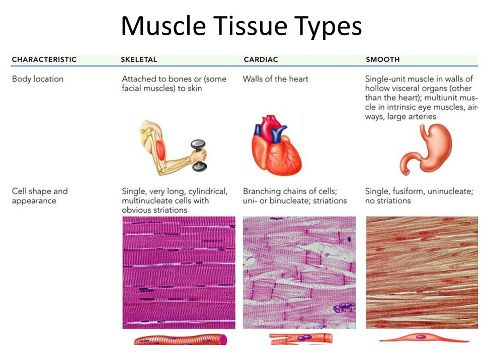 Which type of muscle tissue contains striations?