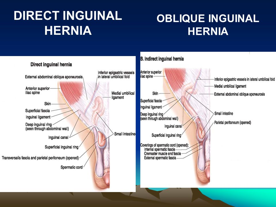 by prof. saeed abuel makarem - ppt video online download inguinal hernia in women diagram plug in wire diagram