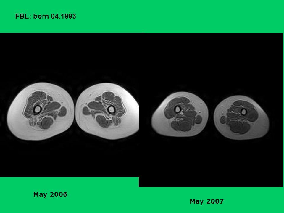 FBL: born 04.1993 May 2006 May 2007