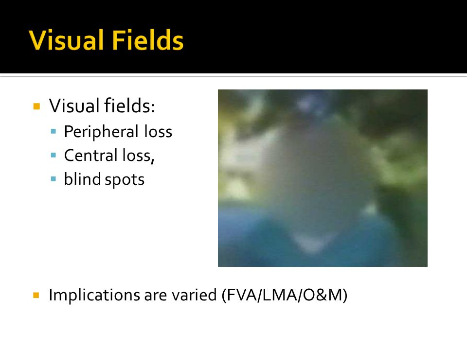 Gepy 6911 Functional Implications Of Visual Impairment