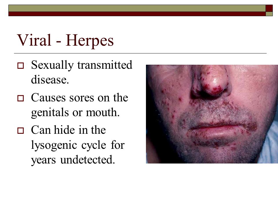 Agree, very is herpes transmitted through sperm