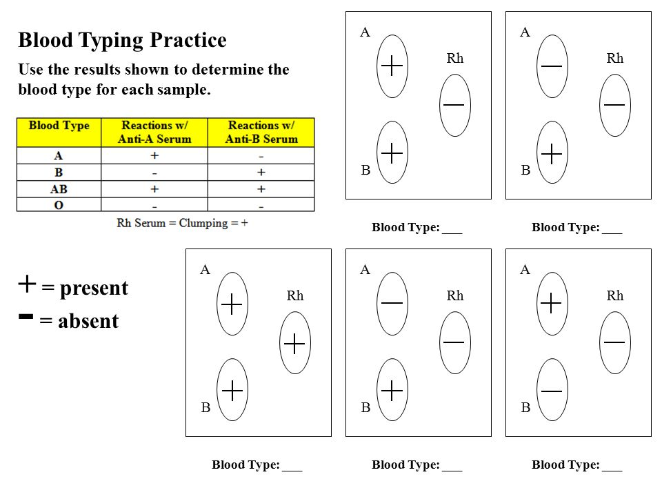 100 blood typing game worksheet human blood types human blood types are controlled by. Black Bedroom Furniture Sets. Home Design Ideas