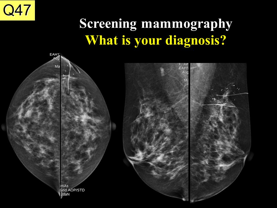screening mammography Archived: breast cancer: screening biennial screening mammography before the age of 50 years should be an individual one and take patient context into account.