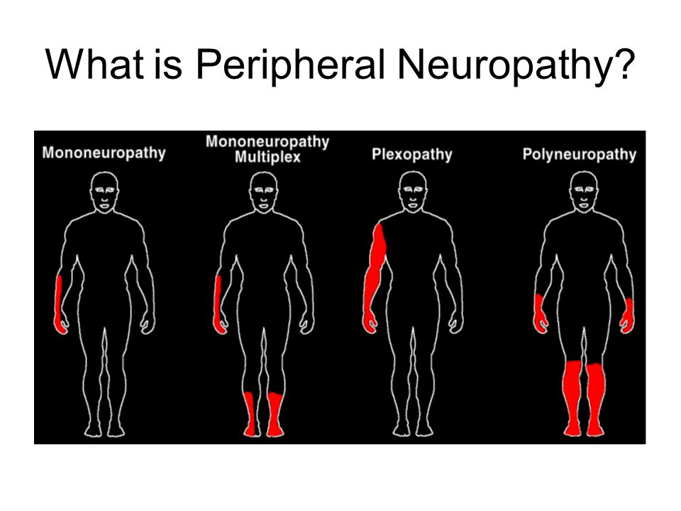Peripheral neuropathy clinical management course february for What is motor neuropathy
