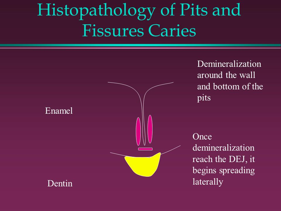 Histopathology of Pits and Fissures Caries