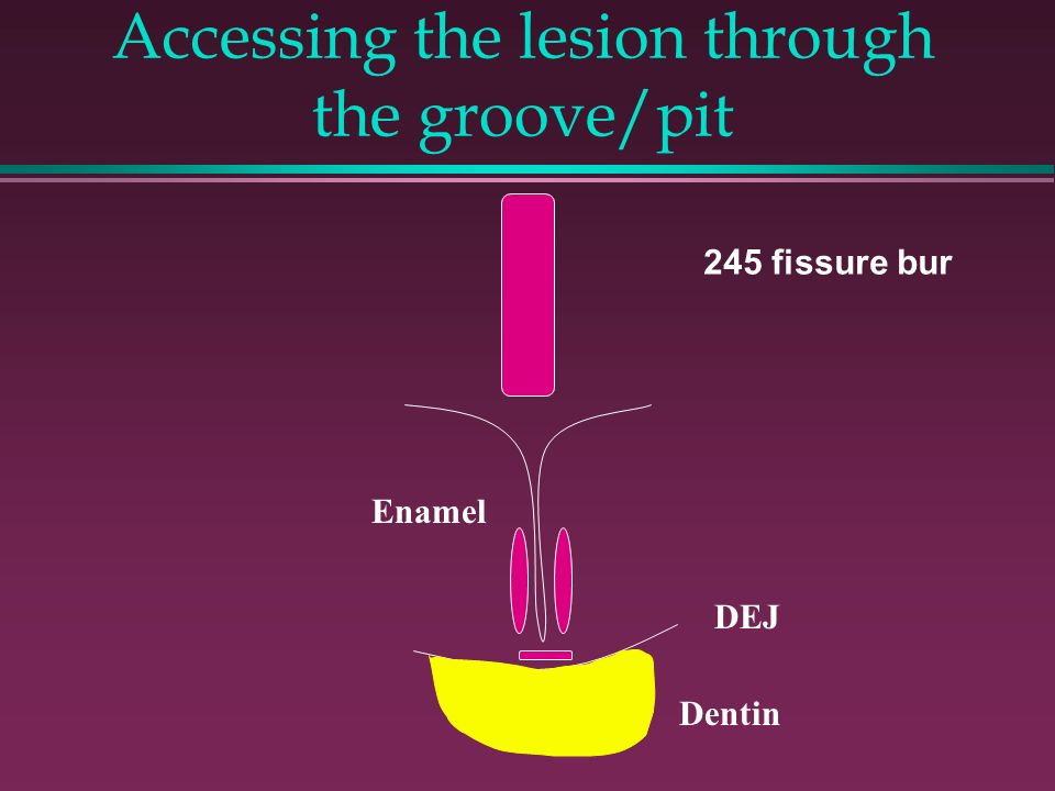 Accessing the lesion through the groove/pit
