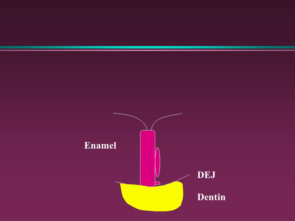 Enamel DEJ Dentin