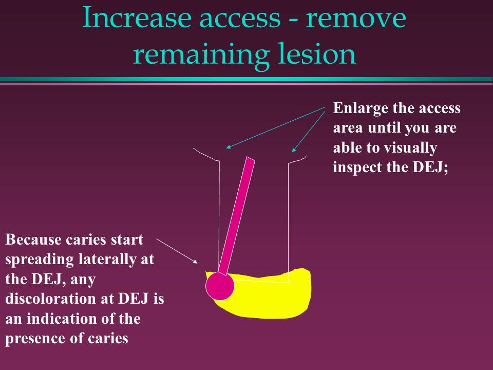 Increase access - remove remaining lesion