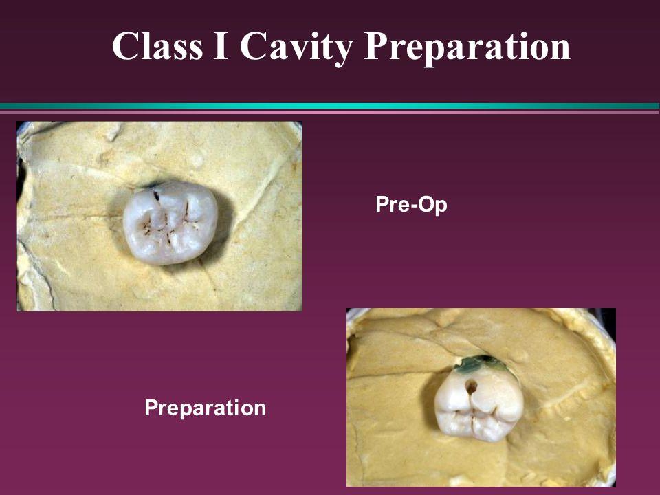 Class I Cavity Preparation
