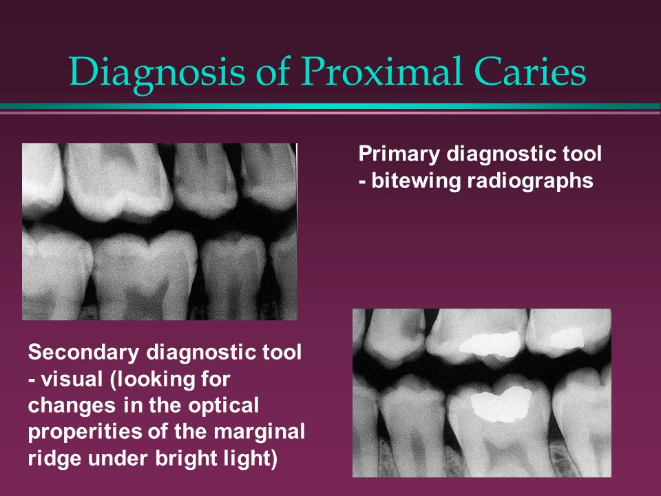 Diagnosis of Proximal Caries