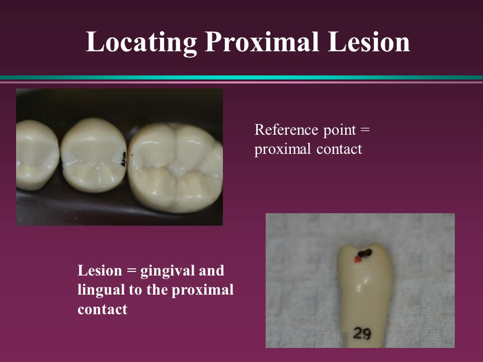 Locating Proximal Lesion