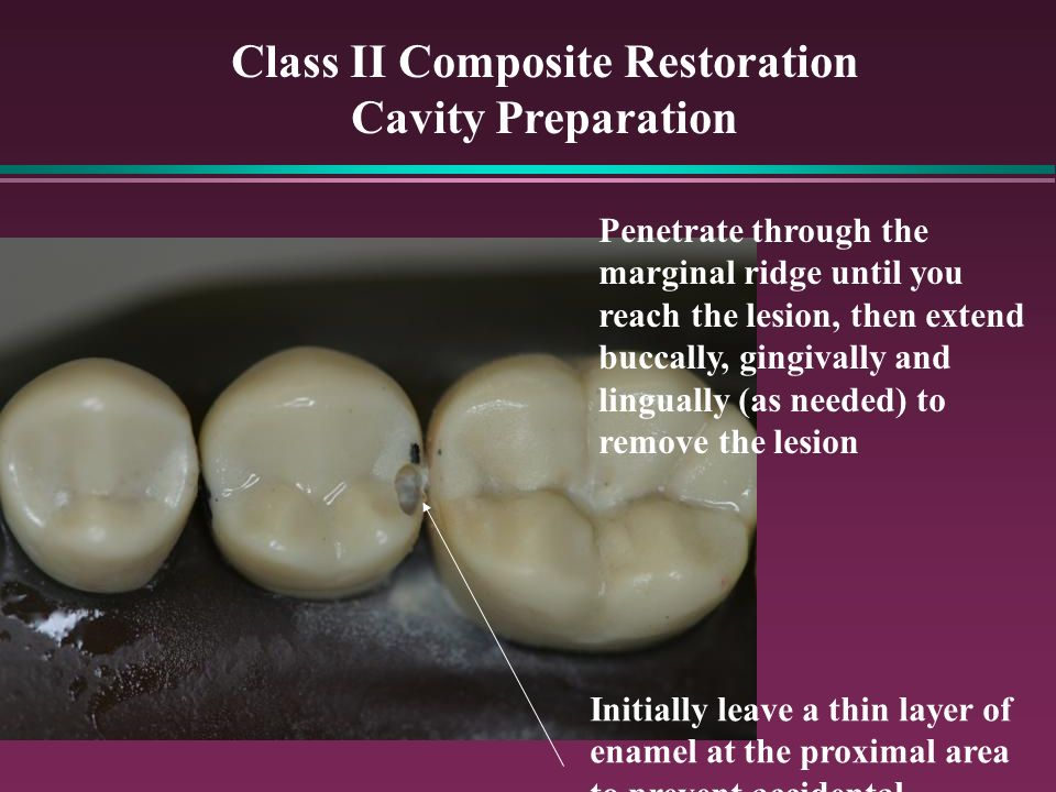 Class II Composite Restoration