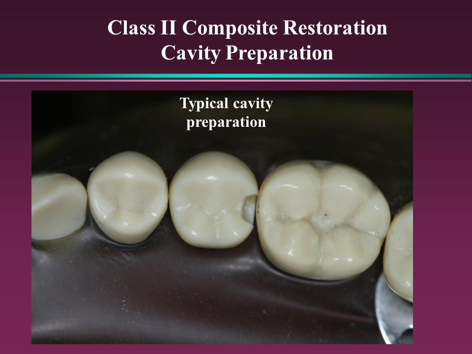 Class II Composite Restoration Typical cavity preparation