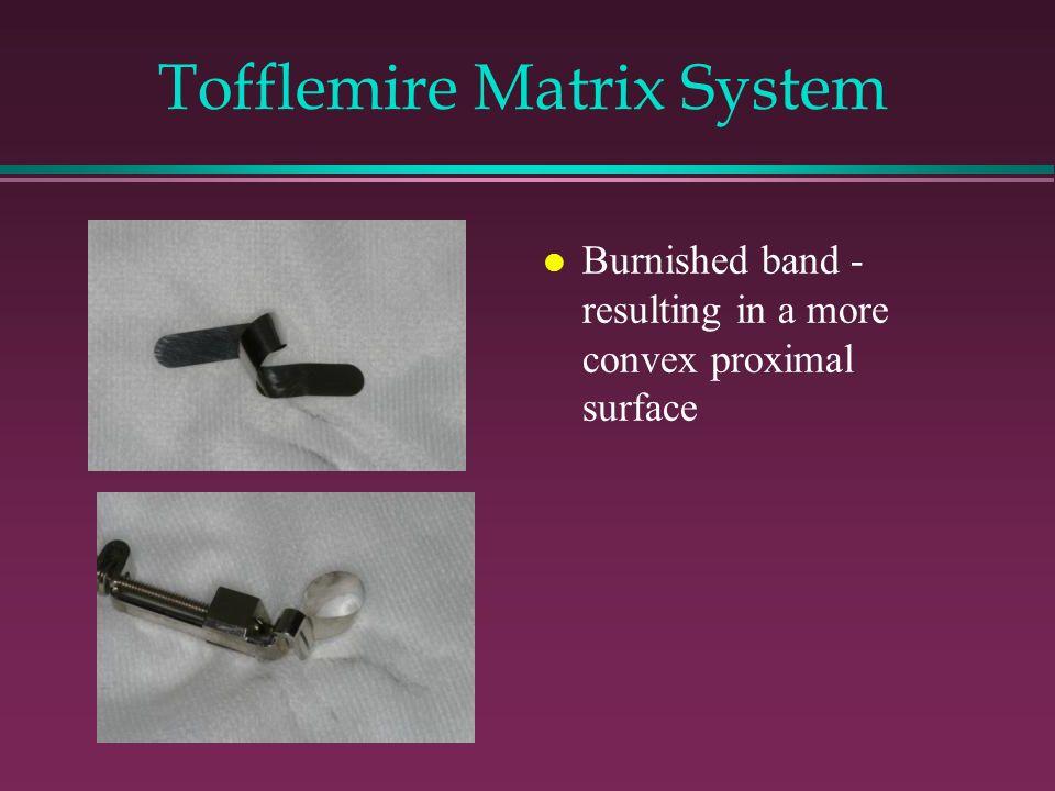 Tofflemire Matrix System