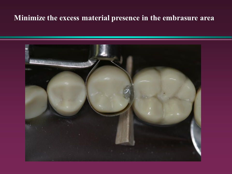 Minimize the excess material presence in the embrasure area