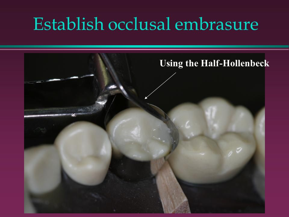 Establish occlusal embrasure