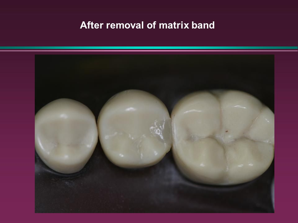 After removal of matrix band
