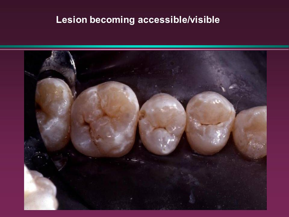 Lesion becoming accessible/visible