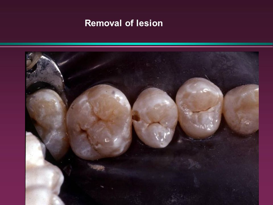 Removal of lesion