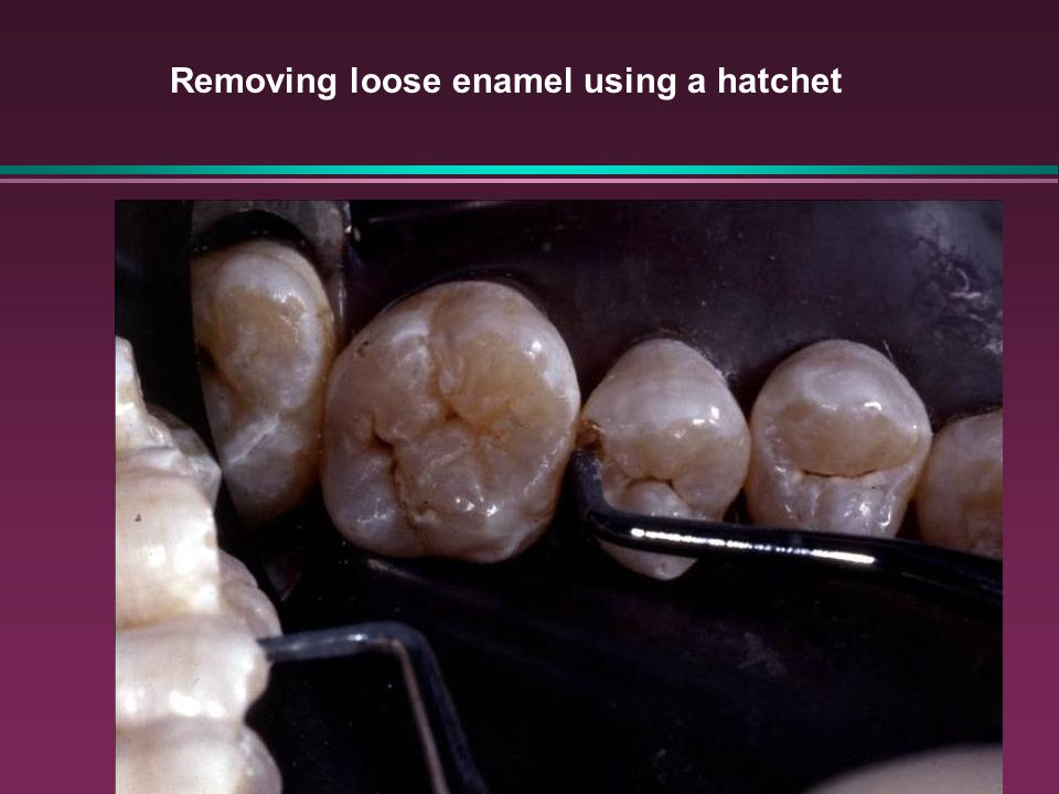 Removing loose enamel using a hatchet