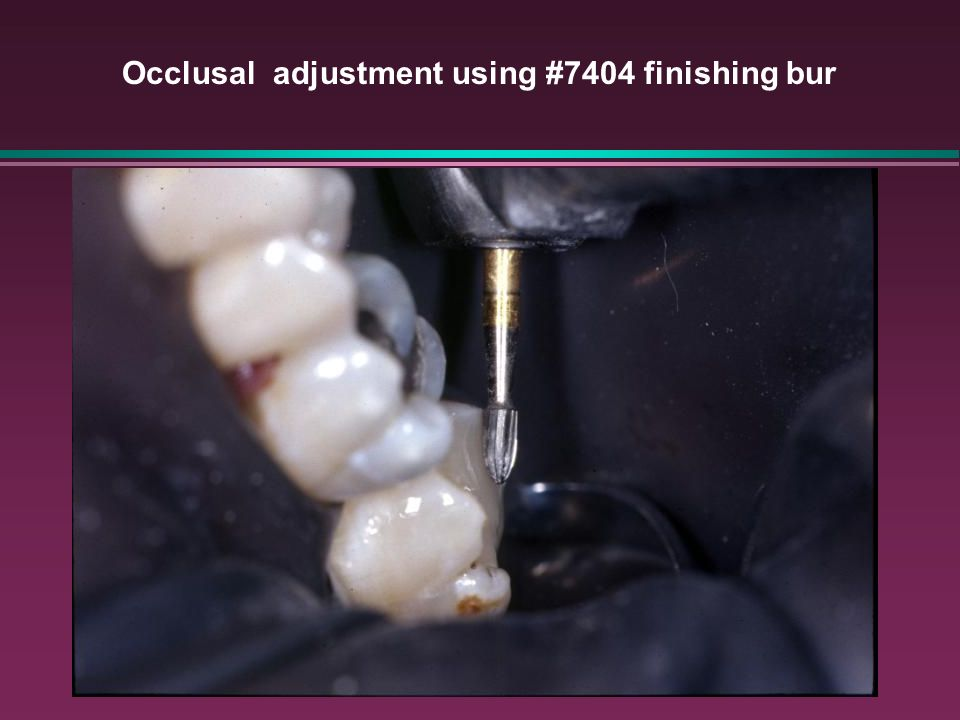 Occlusal adjustment using #7404 finishing bur
