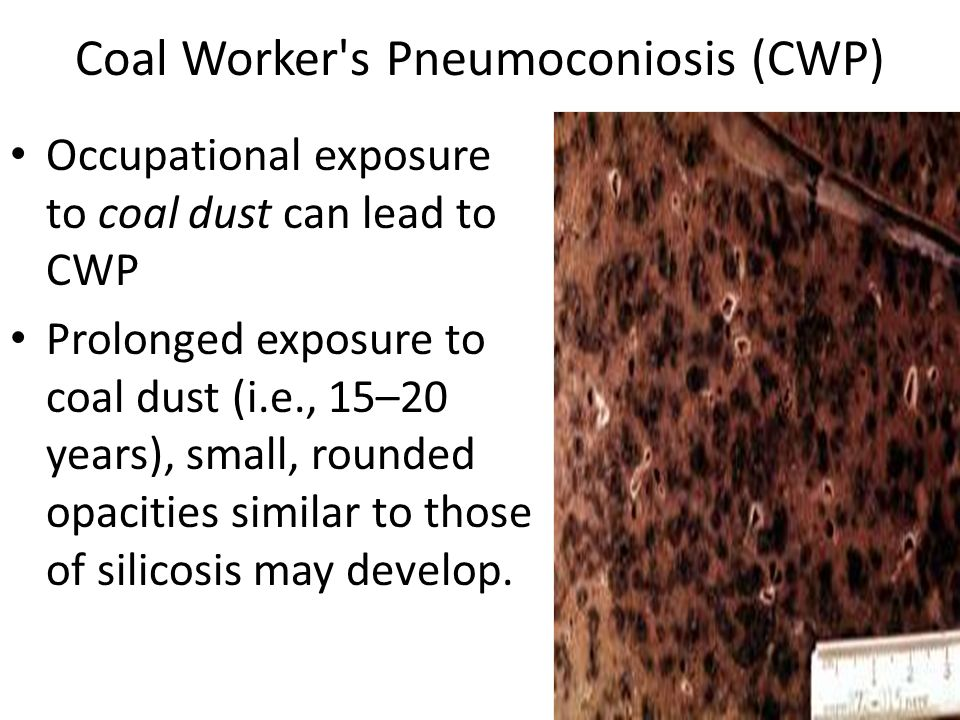 causes of coal workers pneumoconiosis cwp Exposure to asbestos, silica, and coal dust are the most common causes of pneumoconiosis silicosis, and coal workers' pneumoconiosis (cwp.