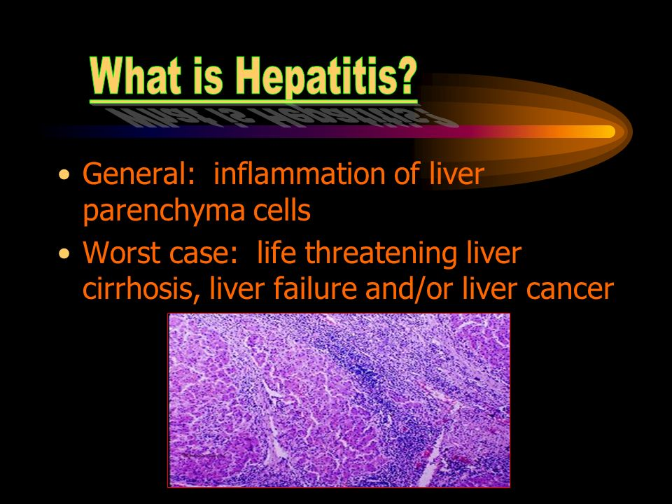the characteristics of hepatitis a form of liver inflammation This form of hepatitis may occur as a super also characteristic of this phase is the evidence of viral replication and active liver inflammation.