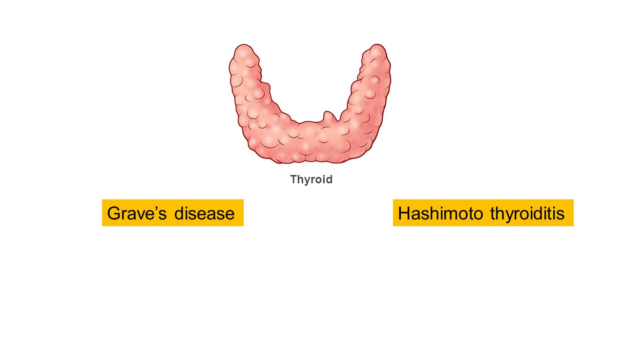 hashimoto thyroiditis Hashimoto's thyroiditis, also known as chronic lymphocytic thyroiditis, is the most common cause of hypothyroidism in the united states it is an autoimmune disorder in which antibodies directed against the thyroid gland lead to chronic inflammation.
