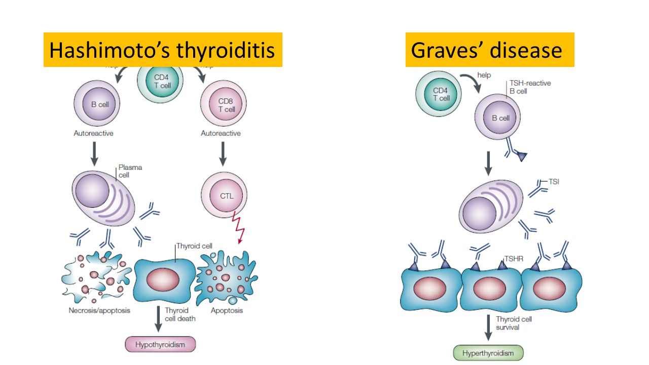 Hashimoto s disease vs graves disease
