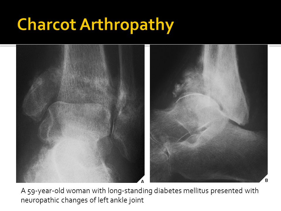 Charcot Arthropathy A 59-year-old woman with long-standing diabetes mellitus presented with neuropathic changes of left ankle joint.