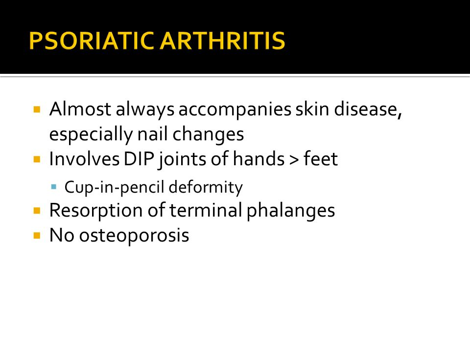 PSORIATIC ARTHRITIS Almost always accompanies skin disease, especially nail changes. Involves DIP joints of hands > feet.