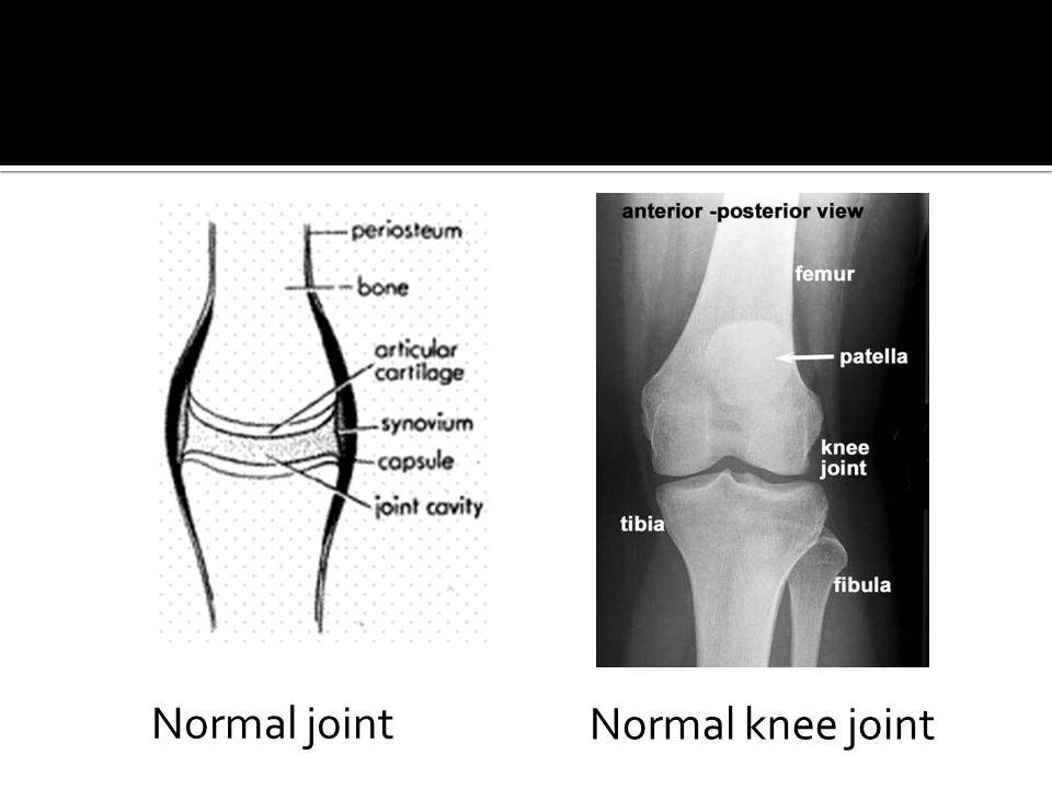 Normal joint Normal knee joint