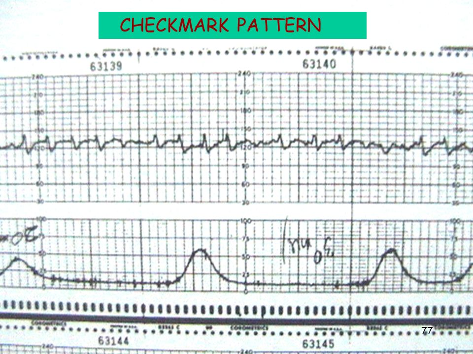 intrapartum fetal monitoring