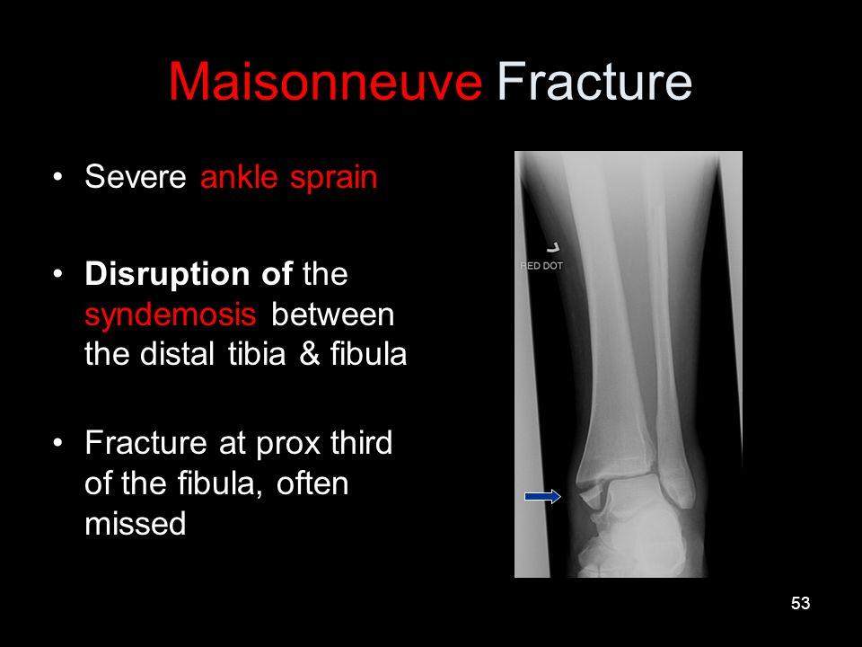 pott s fracture
