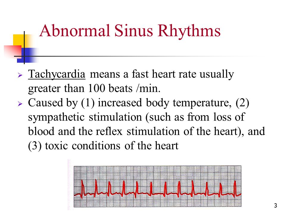electrocardiography abnormalities arrhythmias 7 ppt video online download. Black Bedroom Furniture Sets. Home Design Ideas