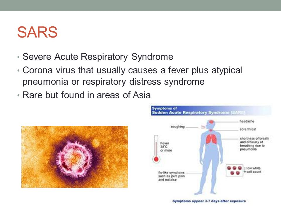 an analysis of severe acute respiratory syndrome also known as sars Severe acute respiratory syndrome another paper from toronto also looked at those who severe acute respiratory syndrome in taiwan: analysis of.