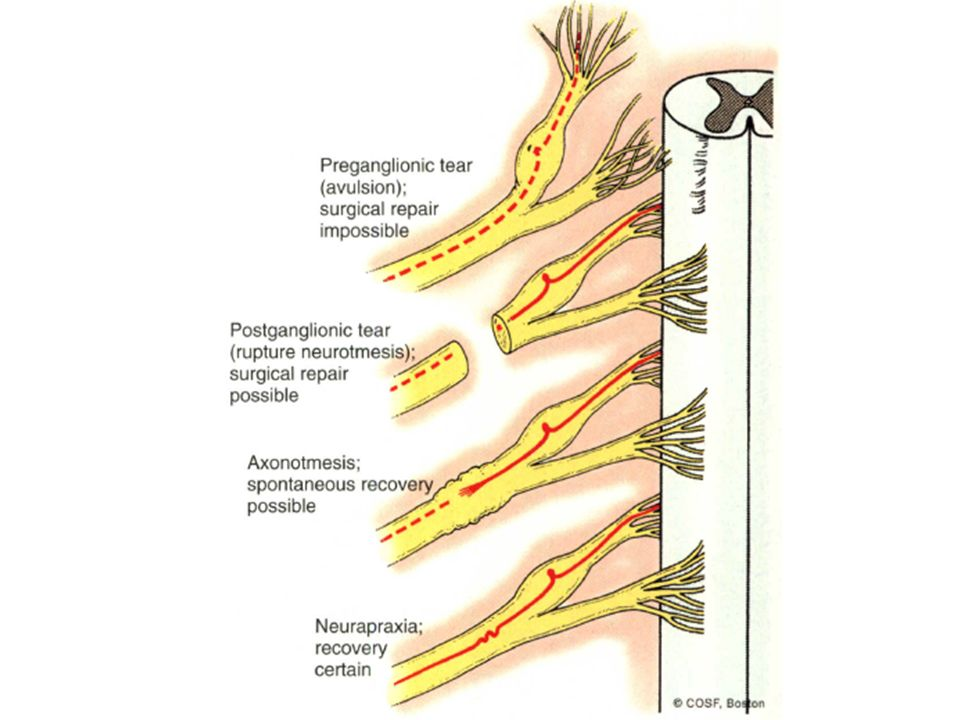 brachial plexus injury birth - photo #22