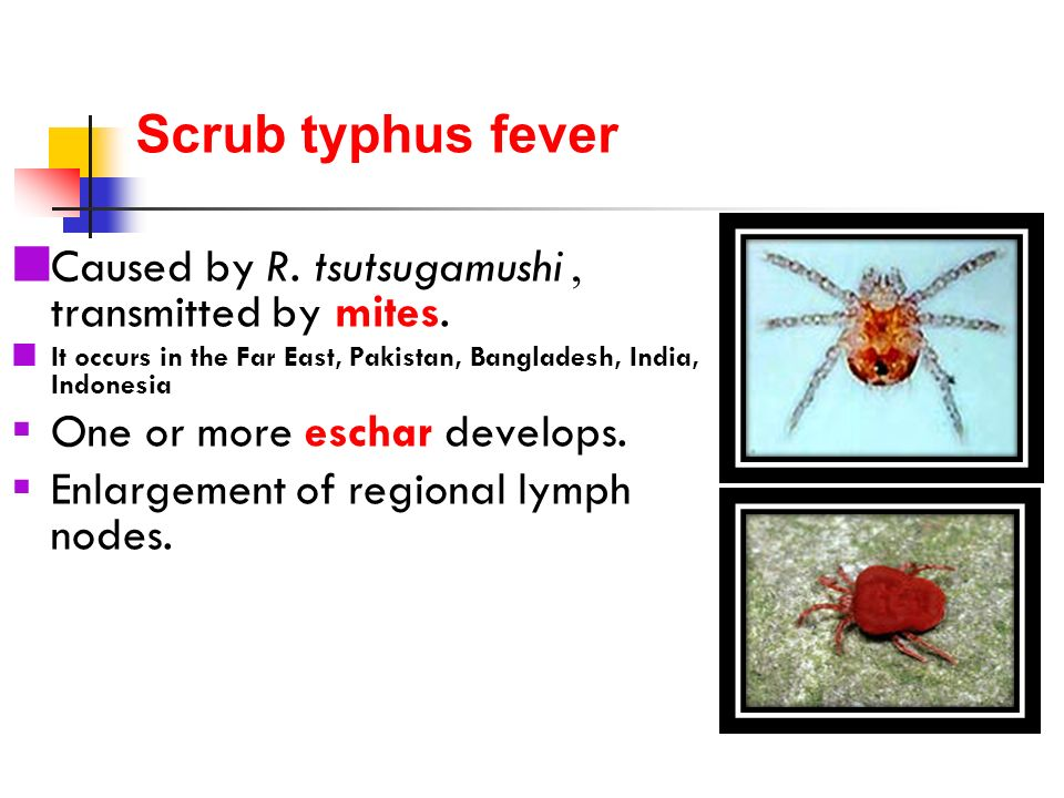 typhus fever research papers Typhus and the jews when dealing with widespread epidemics of typhus fever with articles about german research into the development of anti-typhus vaccines.