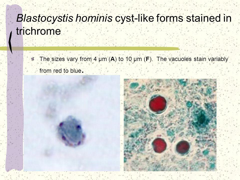 Parasite Blastocystis Hominis Natural Treatment