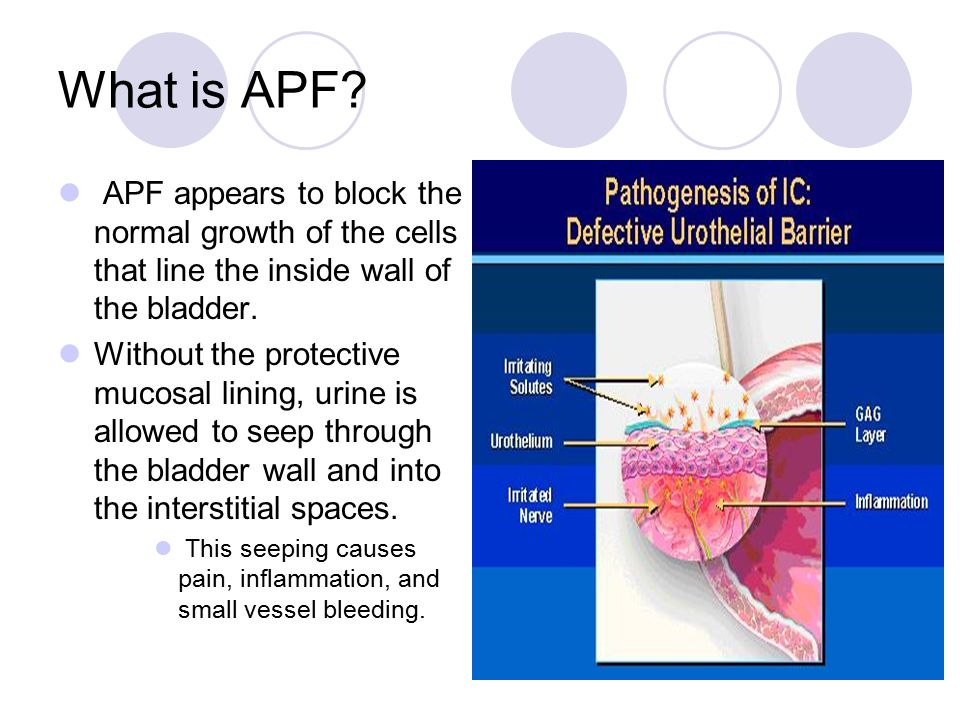 What is APF APF appears to block the normal growth of the cells that line the inside wall of the bladder.