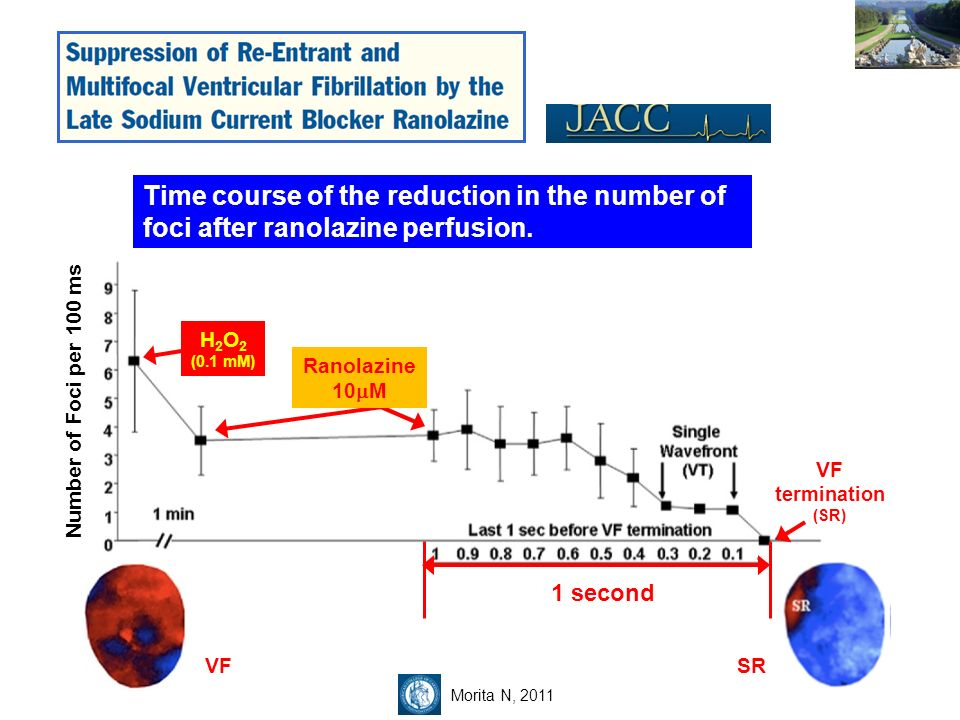Time course of the reduction in the number of foci after ranolazine perfusion.
