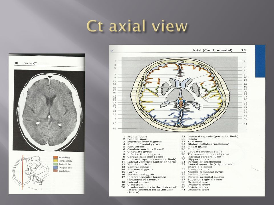 Ct anatomy of brain ppt 2116867 - follow4more.info