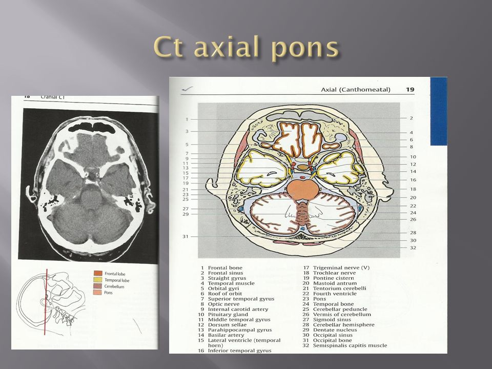 Anatomy ct brain
