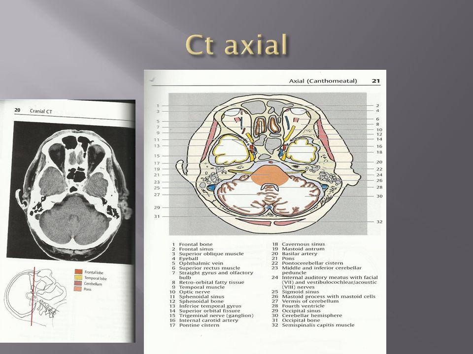 Großartig Ct Hals Anatomie Ppt Bilder - Anatomie Ideen - finotti.info
