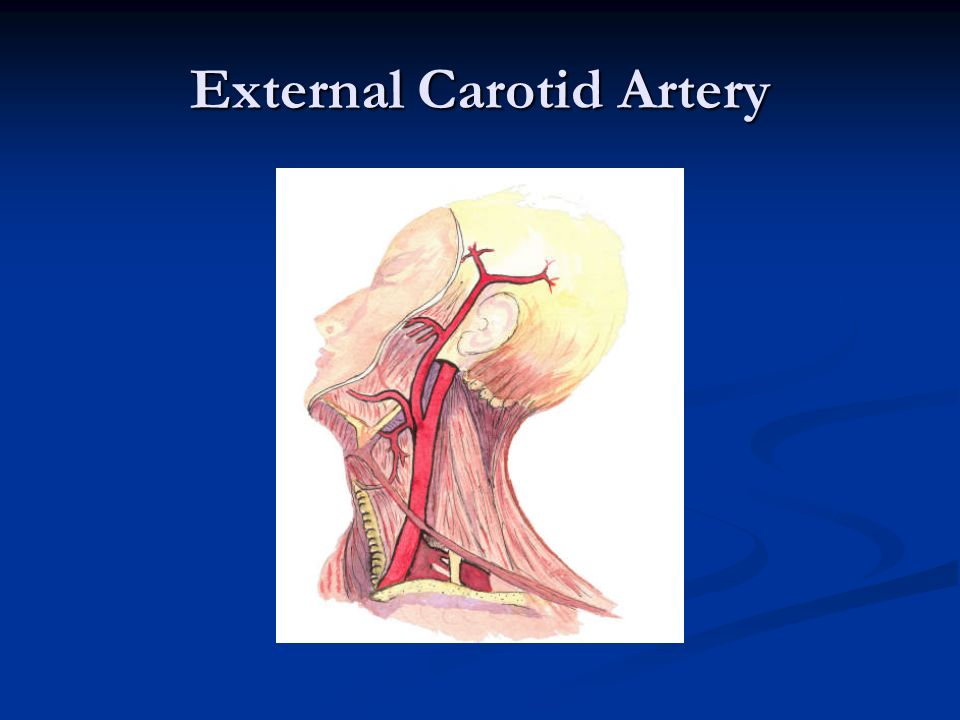 Occlusion and stenosis of left carotid artery