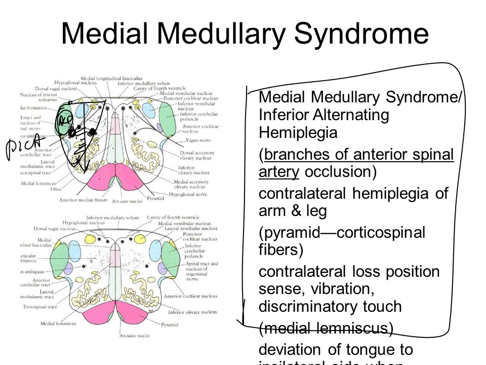 Snap Lateral medullary syndrome Wikipedia photos on Pinterest