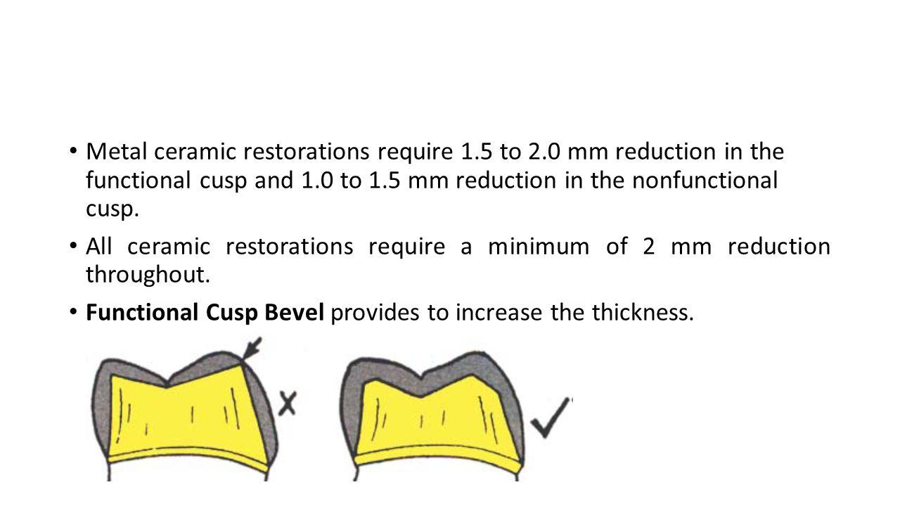 Metal ceramic restorations require 1. 5 to 2
