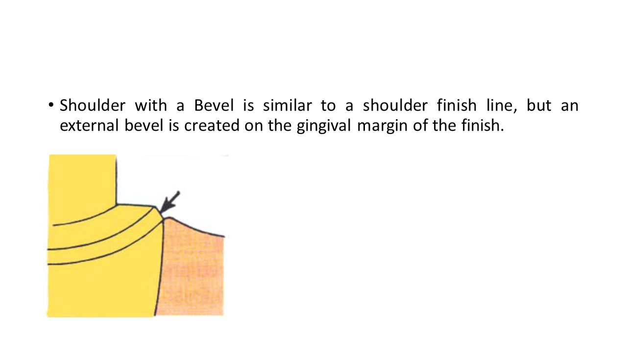 Shoulder with a Bevel is similar to a shoulder finish line, but an external bevel is created on the gingival margin of the finish.