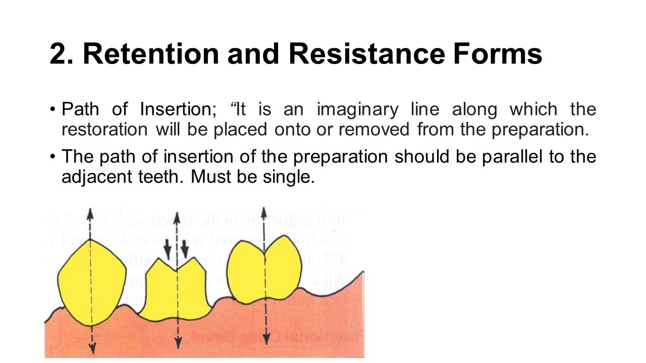 2. Retention and Resistance Forms