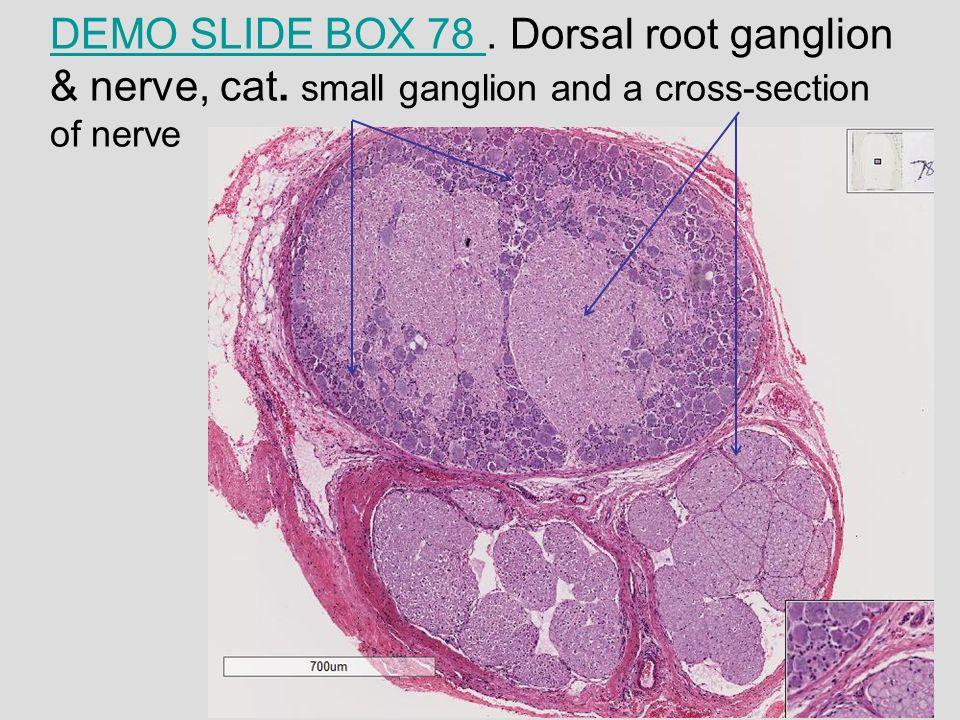 Dorsal Root Ganglion Slide | giftsforsubs
